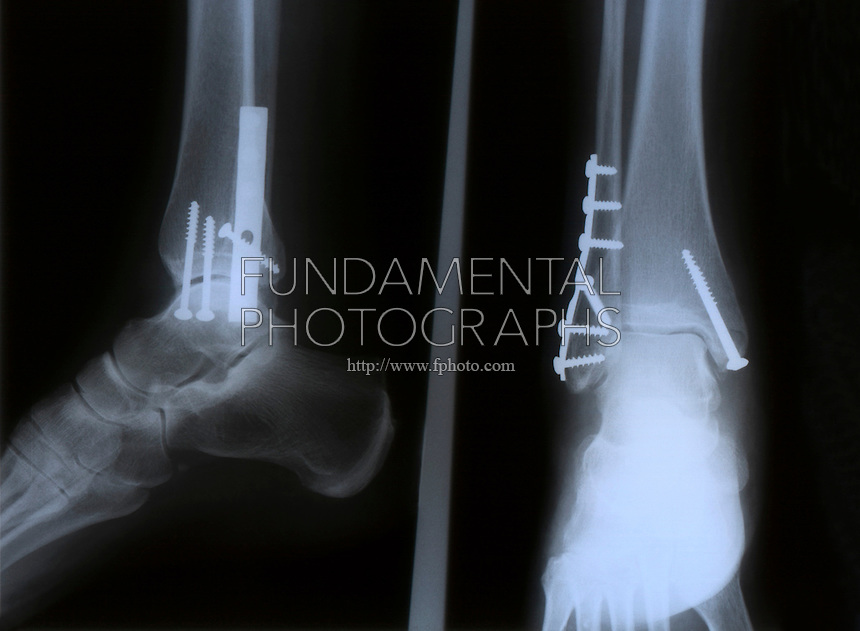 X ray of broken ankle