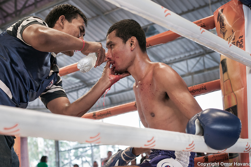 SIEM REAP, CAMBODIA. A trainer applies cold water on an opened face wound to Sarath, a Siem Reap Kun Khmer fighter during one of the breaks in one of the fights of the opening day of the new Siem Reap Arena in Cambodia. Pradal Serey or Kun Khmer -free fighting- is an unarmed martial art from Cambodia. Compared to other forms of Southeast Asian kickboxing, Kun Khmer emphasises more elusive and shifty fighting stances. The Cambodian style tends to utilise more elbows than that of other regions. Evidence shows that a style resembling pradal serey existed in the 9th century, leading the Khmer to believe all Southeast Asian forms of kickboxing started with the early Mon-Khmer people. They maintain that Pradal Serey has influenced much of the basis of Muay Thai. During the Khmer Rouge genocide, traditional martial arts were banned and many boxers were executed or worked to death, which nearly caused the death of pradal serey. Nowadays, Kun Khmer is making a strong comeback in Cambodia, with fighters attempting to market their style of boxing at the same caliber of Muay Thai. Photography: ©Omar Havana