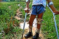Deficiente físico com muletas. São Paulo. 1988. Foto de Daniel Augusto Jr.