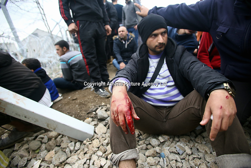 Pictured: An injured migrant by the barbed wire fence Monday 29 February 2016<br /> Re: A crowd of migrants has burst through a barbed-wire fence on the FYRO Macedonia-Greece border using a steel pole as a battering ram.<br /> TV footage showed migrants pushing against the fence at Idomeni, ripping away barbed wire, as FYRO Macedonian police let off tear gas to force them away.<br /> A section of fence was smashed open with the battering ram. It is not clear how many migrants got through.<br /> Many of those trying to reach northern Europe are Syrian and Iraqi refugees.<br /> About 6,500 people are stuck on the Greek side of the border, as FYRO Macedonia is letting very few in. Many have been camping in squalid conditions for a week or more, with little food or medical help.