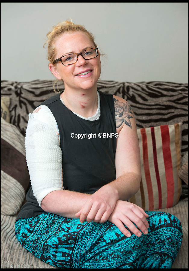 BNPS.co.uk (01202 558833)<br /> Pic: TomWren/BNPS<br /> <br /> Amanda Clarke.<br /> <br /> A mum-of-three is lucky to be alive after her top turned into a fireball while she was cooking dinner for her family.<br /> <br /> Amanda Clarke was left with third degree burns that need a skin graft when her polyester top caught on the gas hob and engulfed her in flames.<br /> <br /> The 34-year-old was forced to rip the top like wrestler Hulk Hogan to get it off over her head, burning her eyeballs and singeing her hair in the process.<br /> <br /> She is now recovering in hospital but will be left with permanent scars to her right arm and chest.