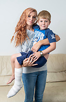 BNPS.co.uk (01202 558833)<br /> Pic: PhilYeomans/BNPS<br /> <br /> Kristina Willmore with her son Oliver (5).<br /> <br /> A five-year-old boy suffered serious burns to his foot after standing on an abandoned barbecue at a busy beach.<br /> <br /> Oliver Briggs was enjoying an afternoon at the seaside when he stepped on the smouldering fire pit buried in the sand.<br /> <br /> He screamed in agony and his shocked mum Kristina Willmore carried him into the sea to cool the burn.<br /> <br /> Oliver was then rushed to A&E and had to be transferred to a hospital with a specialist burns unit.<br /> <br /> He suffered severe blistering to the sole of his right foot. Medics had to cut away the blistered skin and wrap Oliver in bandages.