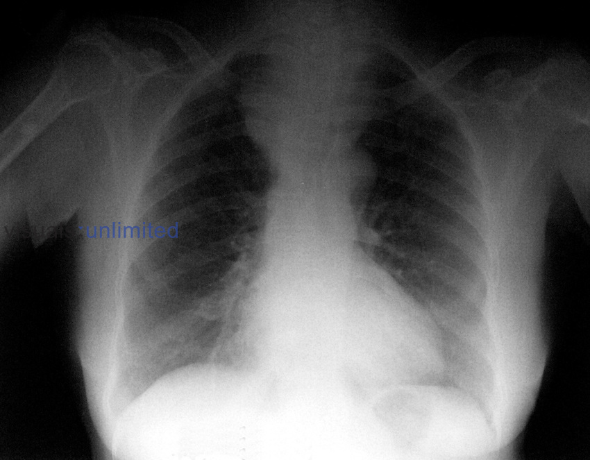 A Post-surgical x-ray of a patient with haemothorax. Royalty Free