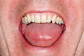 Kingston upon Thames; Surrey. Man's mouth open with good teeth at front; some fillings behind; One day's stubble growth.