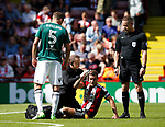Billy Sharp of Sheffield Utd receives treatment to a head injury during the English Championship League match at Bramall Lane Stadium, Sheffield. Picture date: August 5th 2017. Pic credit should read: Simon Bellis/Sportimage
