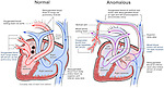 This full color medical exhibit shows two schematic diagrams demonstrating blood flow through a normal and abnormal (anomalous) heart.  The anomalies depicted are a patent, or open, foramen ovale in the heart atrium walls, and an anastomosis between the pulmonary veins with a tributary of the superior vena cava. The latter anomaly causes a great amount of oxygenated blood to be carried from the lungs to the heart without reaching the body's organs and tissues.