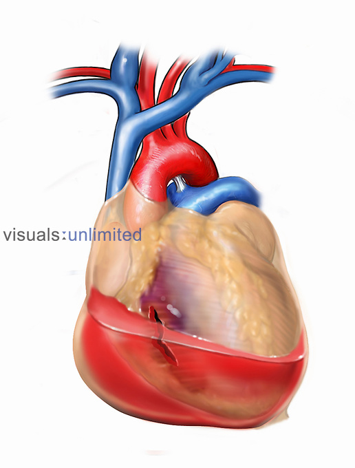 Biomedical illustration of the right ventricle of the heart with associated pericardial hemorrhage.
