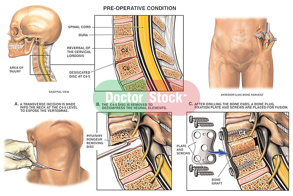 Spinal Surgery - C4-5 Disc Injury with Subsequent Discectomy (Diskectomy)