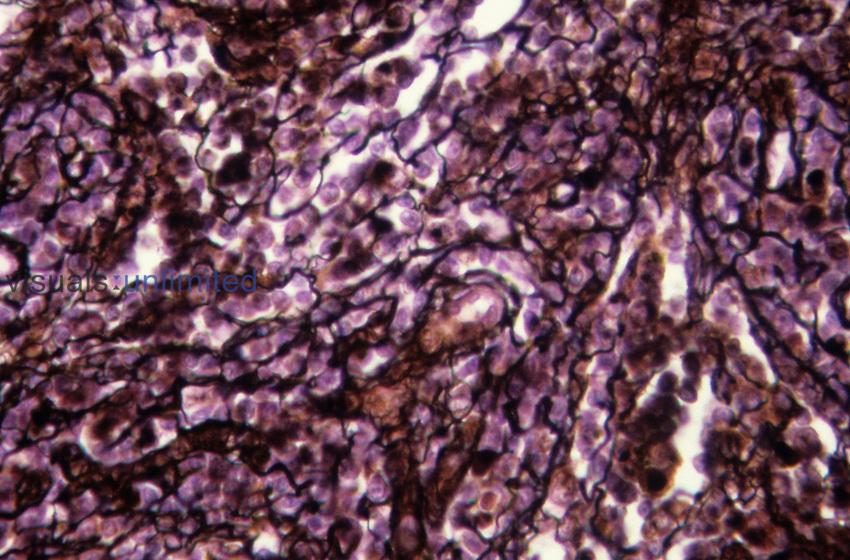 Reticular fibers in a lymph node. LM X450.