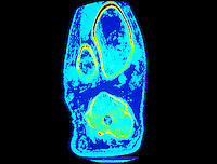 CT scan of the knee.