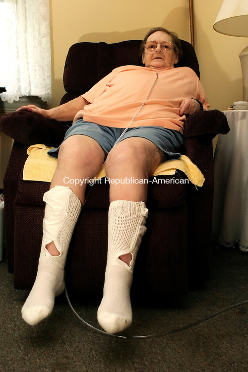 BANTAM, CT - 12 AUGUST 2005 -081205JS05-- Bamtam resident Shirley Bosko is seen here wearing a pair of Cyr Diabetic Sock The sock, designed by Northfield resident Debra Cyr, is adjustable for diabetics who have problems with swollen feet and calves.  --Jim Shannon Photo--Debra Cyr, Cyr Diabetic Sockare CQ