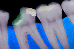 X-ray of mandibular decayed tooth showing carious lesions in the crown. Tooth decay or dental caries are popularly called cavities.
