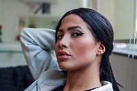 SAO PAULO, SP, 04.08.2018 - CELEBRIDADE-SP - Modelo brasileira de 19 anos, Karen Havary, &eacute; vista ap&oacute;s primeira parte do procedimento est&eacute;tico em Sao Paulo para ser reconhecida oficialmente como cover da cantora norte-americana Nicki Minaj. Karen ja investiu um pouco mais de R$ 200 mil em cirurgias pl&aacute;sticas radicais e procedimentos est&eacute;ticos para alcan&ccedil;ar o objetivo inusitado. <br /> <br /> (Foto: Fabricio Bomjardim / Brazil Photo Press/Folhapress)