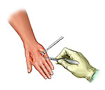 Fasciotomy of dorsum of hand; this medical illustration illustrates a fasciotomy to the dorsal aspect of the hand.