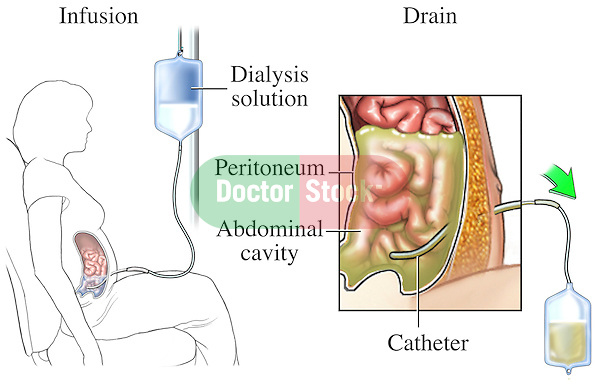 This medical exhibit illustrates peritoneal dialysis of the abdominal cavity.