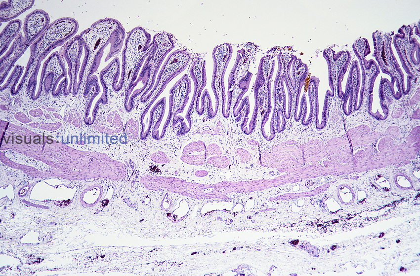 Normal human gallbladder section showing mucosal villi covered by simple columnar epithelium. H&E stain,  LM X10