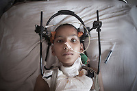 A young victim of the earthquake under treatment in a hospital of Kathmandu, Nepal.  A 7.3 magnitude earthquake killed at least 37 people and spread panic in Nepal on Tuesday, bringing down buildings already weakened by a devastating tremor less than three weeks ago and unleashing landslides in Himalayan valleys near Mount Everest. Kathmandu, Nepal. May 12, 2015