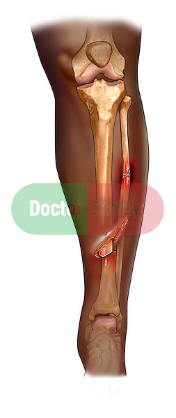 Open fracture of tibia.