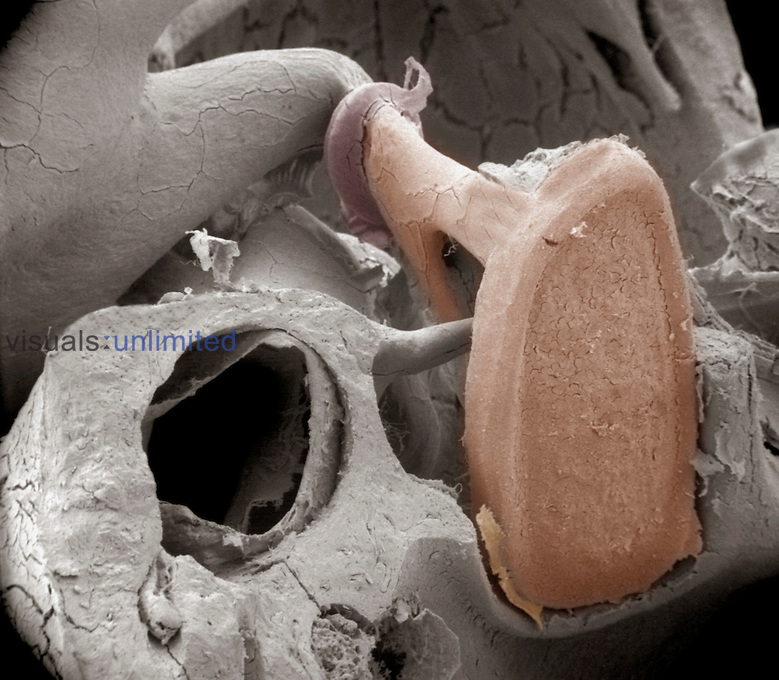 Detail of the incus and stapes human middle ear bones. The incus transmits sound vibrations from the malleus to the stapes, which then transmits them to the inner ear.   The middle ear bones are the smallest bones in the human body. SEM X45  **On Page Credit Required**