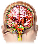 This stock medical image features a coronal (anterior) cut-section through the right ear and brain revealing the spread of bacterial meningitis from the middle and inner ear, via the vestibulotrochlear nerve accross the meninges and dura to the brain.