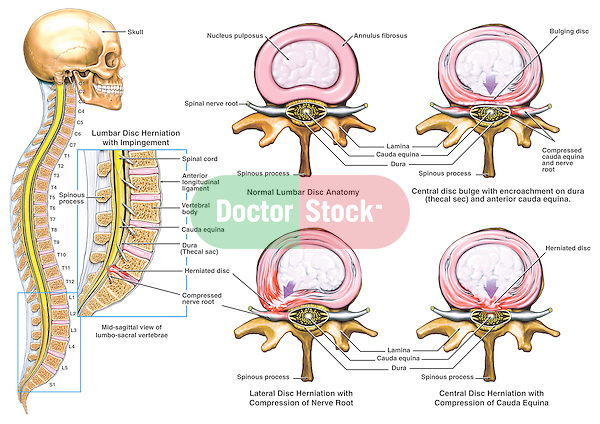 Low Back Pain - Classic Lumbar Disc Herniation. Accurately depicts a typical intervertebral lumbar disc progressing from a normal condition to full disc herniation and nerve root impingement. Shows normal lumbar disc anatomy followed by three variations of disc bulging and herniations (lateral and posterior).  Labeled structures include nucleus pulposus, annulus fibrosus, spinal nerve root compression, disc bulging, spinous processes, dura mater (thecal sac) and cauda equina compression.