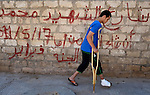 Hisham Algaid walks on crutches in Misrata, Libya. The 17-year old boy was injured on May 17 when he and some other boys were playing with some unexploded heavy machine gun rounds they found on the streets, a product of intense fighting between rebels and troops loyal to Libyan strongman Moammar Gadhafi. His brother Mohammed, 18, died of his injuries, and two other boys were seriously injured and sent to Tunisia for treatment. After months of heavy fighting, unexploded ordnance is found throughout the Misrata area, posing a serious threat to civilians, especially children who are unaware of the danger.