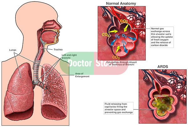 This full color medical exhibit explains the mechanism of acute respiratory distress syndrome (ARDS) with three illustrations. The first image provides an orientation of the lungs within the thorax and the bronchial tree within them. The next two images are enlarged views of a terminal bronchus and the alveolus depicting normal gas exchange and decreased gas exchange due to excessive fluid produced by the surrounding capillaries.