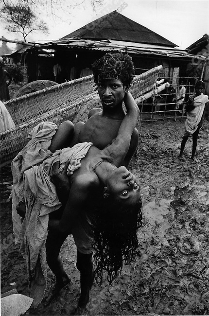 Cholera outbreak after monsoons, war refugee camp, border of India and Bangladesh, 1971.