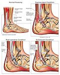 Progression of Right Ankle Tendon Injury