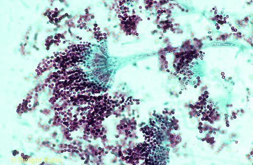 DC28-004b  Brown Mold - spores releasing - Aspergillus conidia - 400x