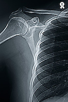 X-ray image of  woman's (49) right shoulder (Licence this image exclusively with Getty: http://www.gettyimages.com/detail/98627203 )