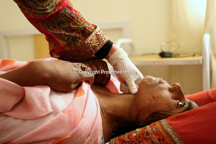 Marianne Carter, burns nurse, is massaging Sameira to release the contracture of the scars, at Acid Survivors Foundation in Islamabad, Pakistan. Sameira became the victim of 2 consecutives attacks because she refused an illicit relationship. She was 12 years old : « Once, in the market, i heard people laughing on my back... I know my face will never change. But i want to try to live as before, as before... »-2009