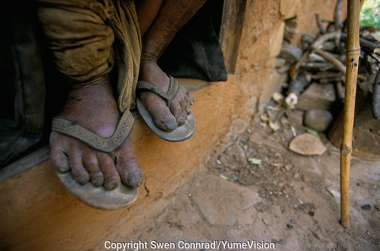 The barefoots of a Nepali farmer in Rolpa District