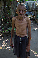 Borobudur, Java, Indonesia.  Emaciated Indonesian Man.
