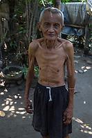 Borobudur, Java, Indonesia.  Emaciated Indonesian Man.