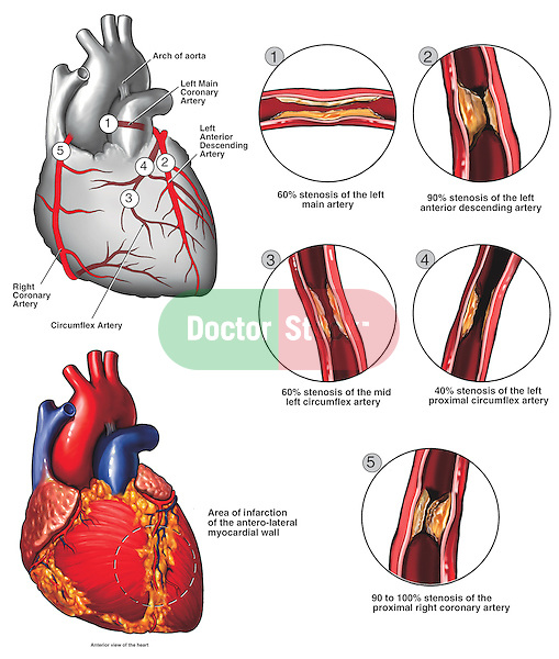 Atherosclerotic Coronary Artery Disease