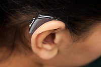 Position of hearing aid behind the ear