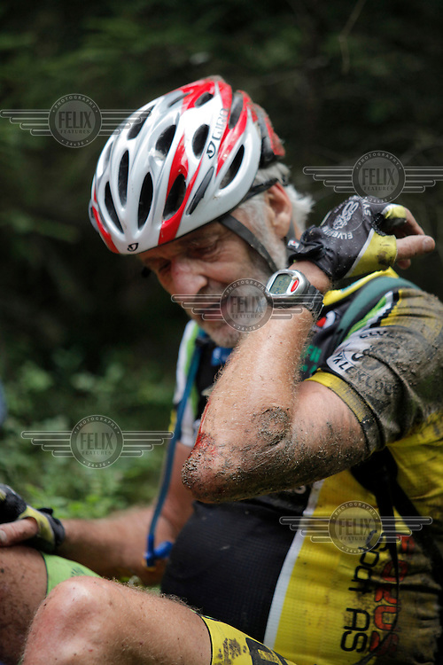 A man looks at his injuries after taking a tumble. Grenserittet is a 80km mountain bike race starting in the Swedish town of Strömstad, ending up in the Norwegian town Halden. The interest for these kind of bike races has exploded in Norway the last few years, particularly with middle age affluent men.