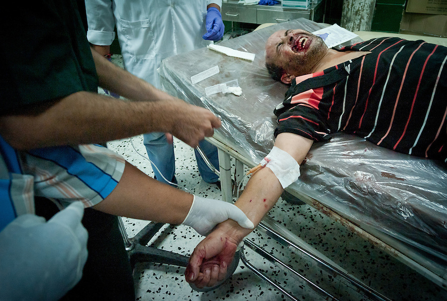 Civilian casualty at Al-Zawiya Hospital, Zawiya, Libya