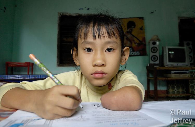Luong Hoai Thuong does her homework. She was born without her left hand, a birth defect caused by Agent Orange remaining from the U.S. war against Vietnam. Agent Orange was a herbicide that the U.S. military used to defoliate vast stretches of Vietnam and Laos during the 1960s and early 1970s, so the Communist forces would have no place to hide. The defoliant is known to cause a myriad of birth defects in the children of those exposed. As much as 18 million gallons of Agent Orange were sprayed around Vietnam, according to a study by the Government Accountability Office, an investigative arm of the U.S. Congress. The Vietnamese government estimates that as many as 400,000 Vietnamese have died from illnesses related to exposure to dioxin, such as cancer. It also claims that up to 500,000 children have birth defects, such as spina bifida, because their parents were exposed.