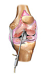 Chondroplasty; this medical illustration illustrates a chrondroplasty to the knee.