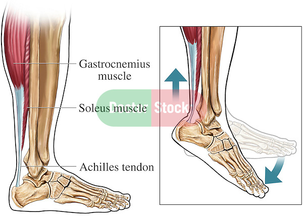 This image features two illustrations to explain the anatomy and physiology of the achilles tendon of the ankle. The first illustration shows the achilles tendon, soleus muscle and gastrocnemius muscle, lower leg and foot bones from a lateral view. The second image is and enlargement of the same ankle and foot anatomy in an extended position; it demonstrates the action of the achilles tendon during extension (when the foot is extended).