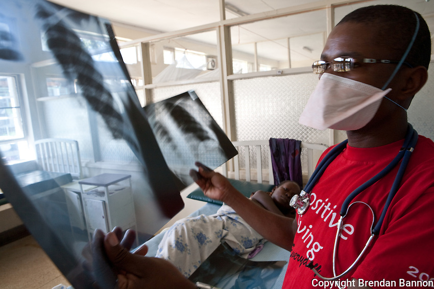 A doctor examining the chest X-rays of a TB patient in  the hospital in Homa Bay, Kenya.