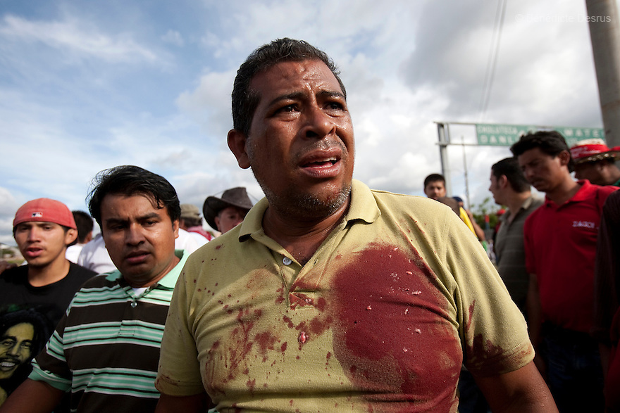 5 July 2009 - Tegucigalpa, Honduras - A supporter of ousted Honduran President Manuel Zelaya after a battle between soldiers and protesters outside the Toncontin international airport in Tegucigalpa. The blood on his shirt is from one of the dead. At least one person was killed and ten were badly wounded in Honduras on Sunday when protesters demanding the return of Zelaya clashed with troops at the main airport in the capital. Photo credit: Benedicte Desrus