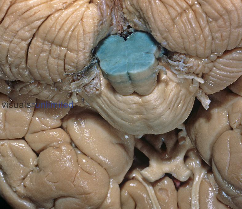 Dissection of the human brain stem