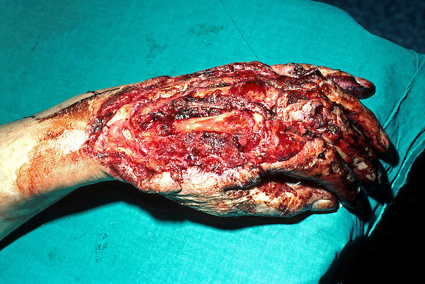 Crush injury to hand caused by trapping hand and fingers in heavy machinery. This image may only be used to portray the subject in a positive manner..©shoutpictures.com..john@shoutpictures.com