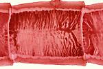 Beef Tapeworm (Taenia saginata) gravid proglottid. LM X2.5