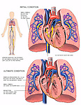 This medical exhibit uses three images to depict fatal pulmonary embolism from the lower left leg to a cut section of the heart and lungs. Initially, small emboli in the lungs are shown to block the blood supply to part of the lungs. Ultimately, larger emboli are seen to block the right ventricle and the pulmonary trunk and infarction of a lobe of the right lung is pictured.