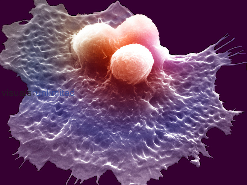 A macrophage engulfing three cancer cells. Macrophages are specialized white blood cells or leukocytes that circulate through the blood stream searching for bacteria, dead or abnormal cells, or foreign objects to engulf by phagocytosis. SEM X3000.