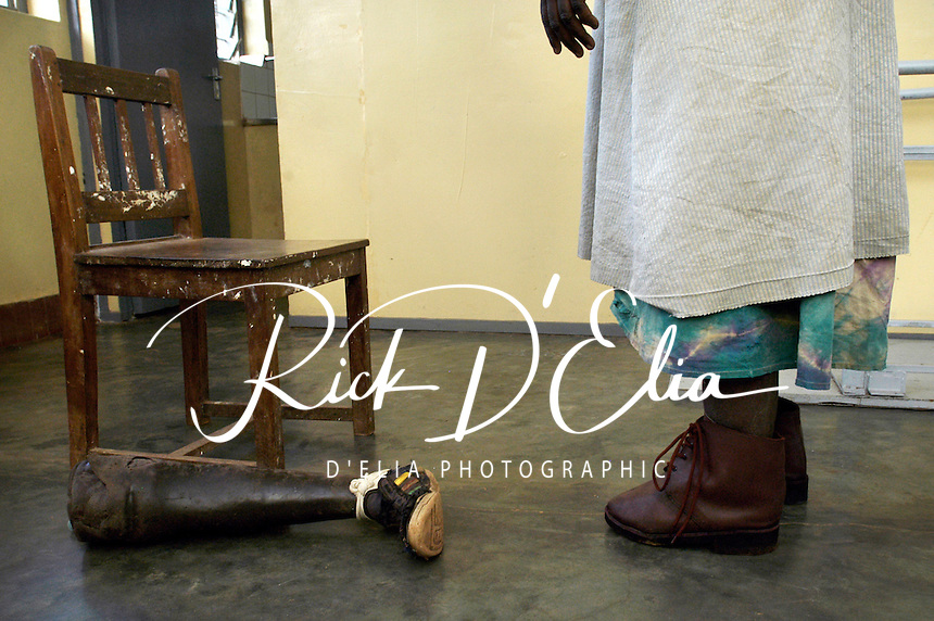 Akello Mary, patient at the AVSI/Gulu hospital orthopedic clinic tries on a new leg after wearing out her first one. She lost her foot to a landmine placed by the Lord's Resistance Army. (Rick D'Elia)